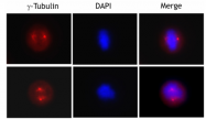 AM06032PU-S - TUBG1 / Tubulin gamma 1