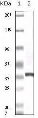 AM06112PU-N - CACYBP