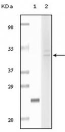 AM06130SU-N - Fibulin-5