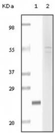 AM06131SU-N - Fibulin-5