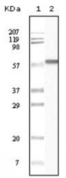 AM06137SU-N - CSNK1A1