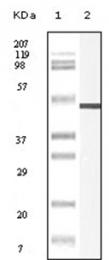 AM06159SU-N - Vimentin