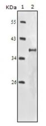 AM06175SU-N - CD221 / IGF1R