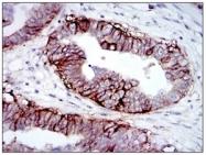 AM06184SU-N - CD221 / IGF1R