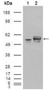 AM06211SU-N - Calreticulin