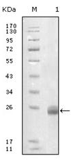 AM06223SU-N - Fibulin-5