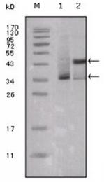 AM06229SU-N - Estrogen receptor alpha