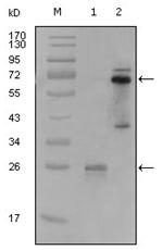 AM06232SU-N - SLC22A1 / OCT1