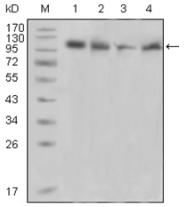 AM06233SU-N - FAK2 / PTK2B