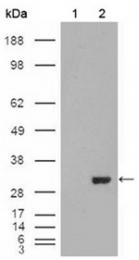 AM06244SU-N - Carbonic anhydrase 1