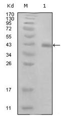 AM06265SU-N - HPV16 E7 protein