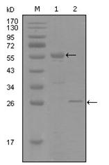 AM06274SU-N - Progesterone receptor