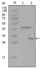 AM06278SU-N - Estrogen receptor alpha
