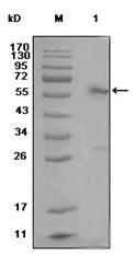 AM06288SU-N - Estrogen receptor alpha