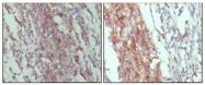 AM06301SU-N - CD45 / LCA