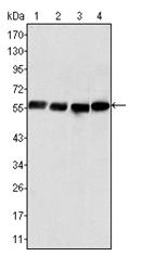 AM06304SU-N - Vimentin