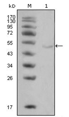 AM06325SU-N - Lipoprotein lipase