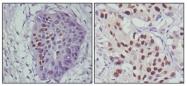 AM06330SU-N - TP53 / p53