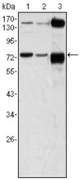 AM06380SU-N - ATP2C1