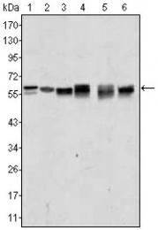 AM06381SU-N - AKT2 / PKB beta