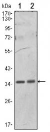 AM06514SU-N - PPP1CA