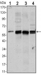 AM06526SU-N - AKT1 / PKB