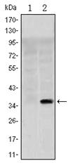 AM06553SU-N - SLC22A1 / OCT1
