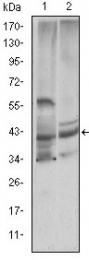AM06614SU-N - Cystatin-C
