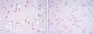 AM06645SU-N - Glutamate receptor 3 / GLUR3
