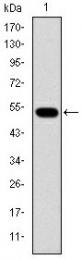 AM06654SU-N - Glucokinase / Hexokinase-4