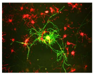 AM08253SU-N - Neurofilament  M (160 kD)