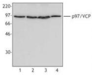 AM08335PU-M - TER ATPase / VCP