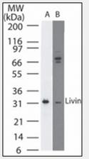 AM08363PU-N - BIRC7 / LIVIN