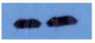 AM09263PU-N - Beta-2-microglobulin
