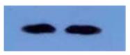 AM09265PU-N - Beta-2-microglobulin