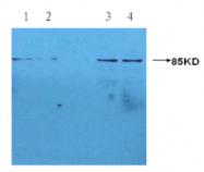 AM09268PU-N - C-reactive protein (CRP)
