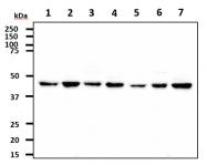 AM09387PU-N - CTBP1