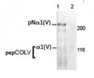 AM10160PU-N - Collagen type V