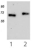 AM10162PU-N - CRLF2