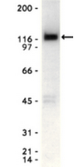 AM10561PU-N - EPHA2 / ECK
