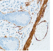 AM11086PU-S - ACTA2 / aortic smooth muscle Actin