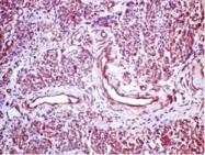 AM21049PU-N - Progesterone receptor