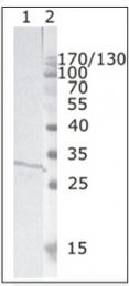 AM26074PU-N - HIV-1