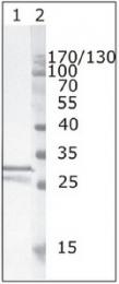 AM26075PU-N - HIV-1