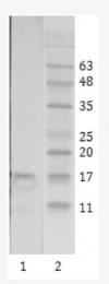 AM26084PU-N - HIV-1