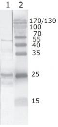 AM26085PU-N - HIV-1