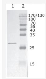 AM26088PU-N - HIV-1