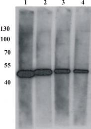 AM26101PU-N - BPV-1