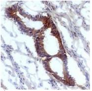 AM26141PU-N - Nitrotyrosine