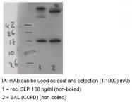 AM26282PU-N - Antileukoproteinase (ALP)